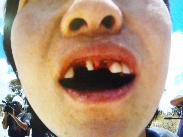 イモトアヤコのボロボロ前歯