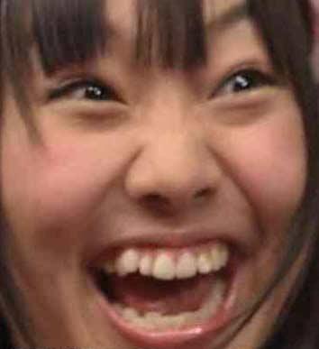 須田亜香里 歯並び