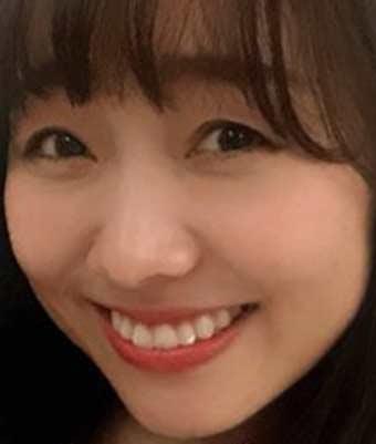 須田亜香里 歯