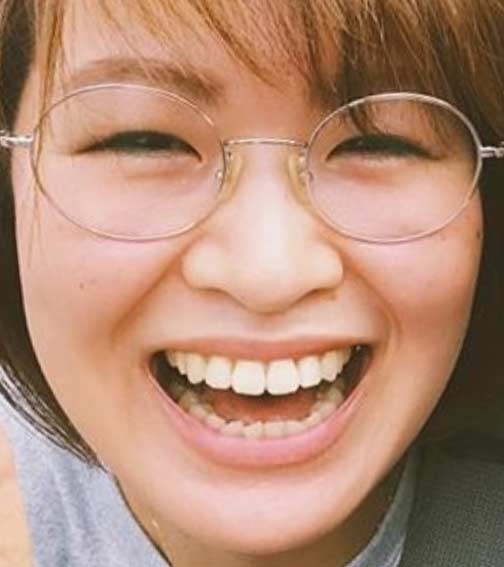 木村沙織の前歯