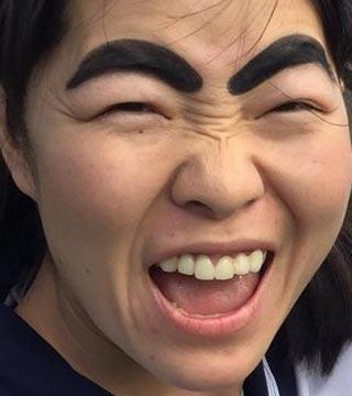 イモトアヤコ インプラント