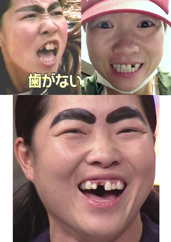 イモトアヤコの歯抜け画像