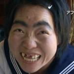 【前歯崩壊→奇跡のインプラント】イモトアヤコの前歯を検証(レントゲン写真)