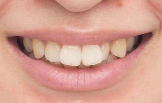 木村沙織 前歯
