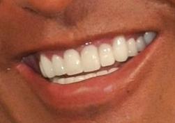 清原 差し歯