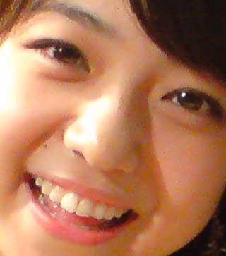 中村静香 前歯の写真