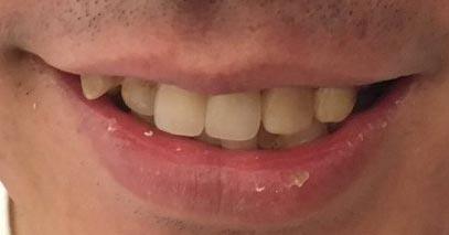 三四郎 小宮 前歯