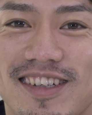 高橋大輔 前歯の写真