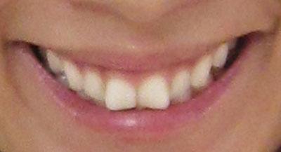 優香 前歯