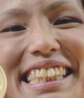 松本薫 柔道 前歯の写真