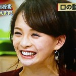 舞川あいくさんの前歯と歯茎の画像