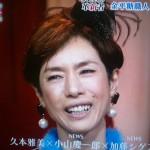 久本雅美さんの前歯の画像(出っ歯治療)