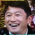 武田修宏さんの前歯の画像(虫歯)