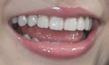 川島海荷 前歯