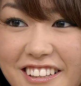 桐谷美玲 前歯