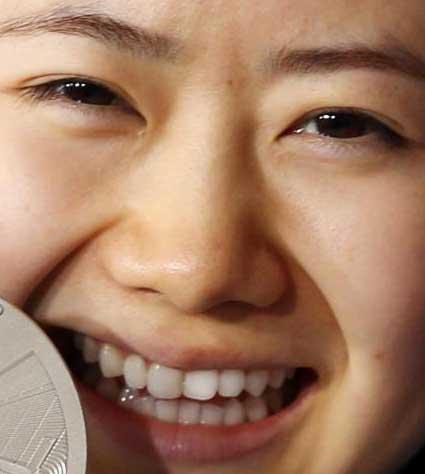 福原愛 前歯の写真
