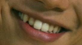 福士蒼汰 前歯