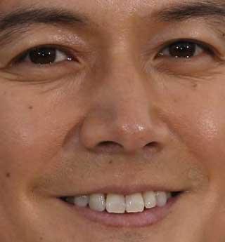 福山雅治 歯