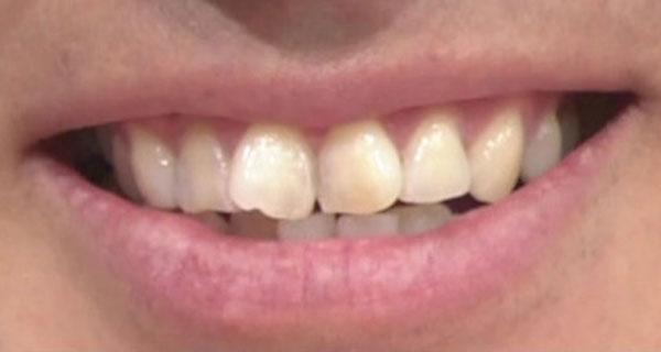 オードリー春日 前歯