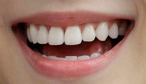 キムヨナ 前歯