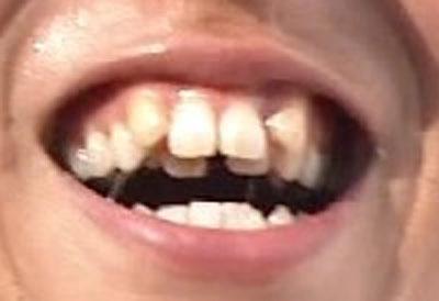 木崎良子 前歯の写真