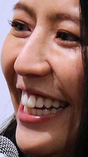 長澤まさみ ビーバー歯