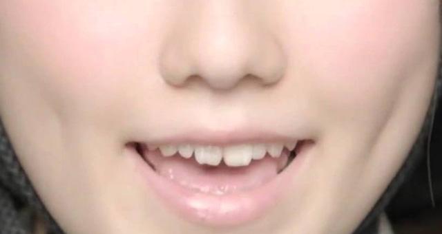島崎遥香 前歯の画像