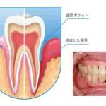 歯周病についての基礎知識