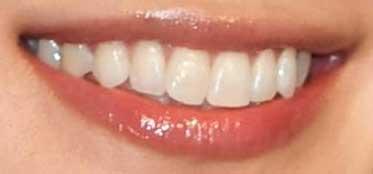平愛梨 前歯の写真