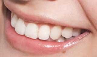 上戸彩 前歯の写真
