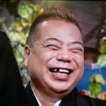出川哲郎さんの前歯の画像(部分入れ歯)