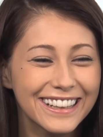 ダレノガレ明美 前歯