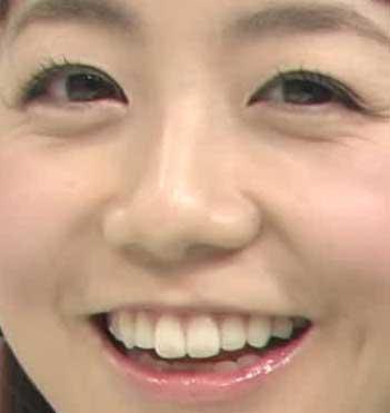 福田萌 前歯