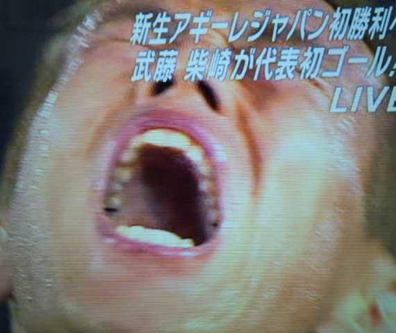 本田圭祐 銀歯