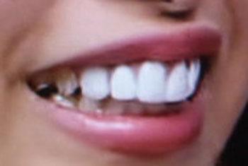近藤千尋 前歯