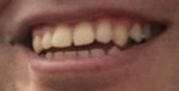 ロッチ中岡 前歯