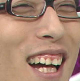 竹田恒泰 歯茎
