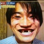 山本大貴選手の前歯の画像(入れ歯)