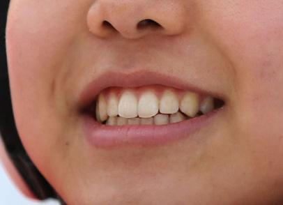 高梨沙羅の前歯