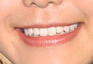 高梨沙羅 前歯