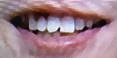 風間俊介 欠けた前歯