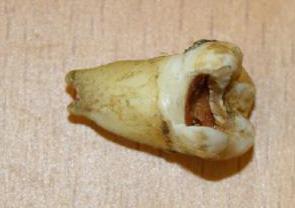 ジョン・レノンの奥歯