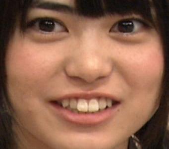 前田亜美の前歯