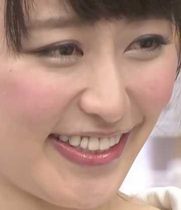 枡田絵理奈 入れ歯