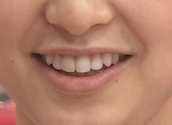 篠田麻里子 前歯