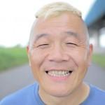 ウド鈴木さんの前歯の画像(変色した歯)