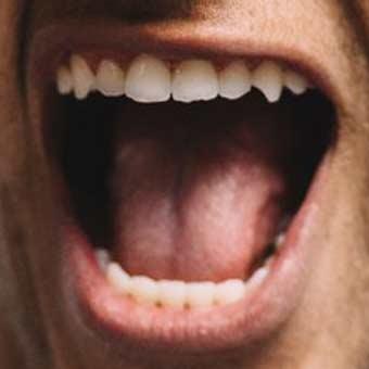 Neymar teeth