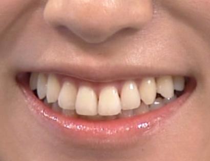 深田恭子 前歯