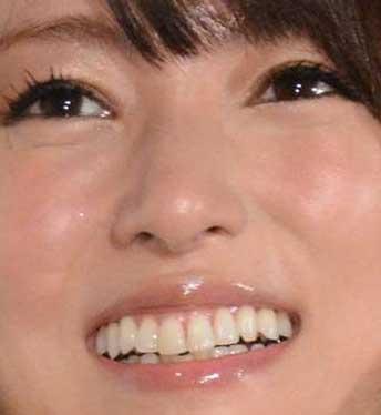 深田恭子 歯並び