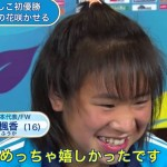 児野楓香選手の前歯の画像(虫歯)